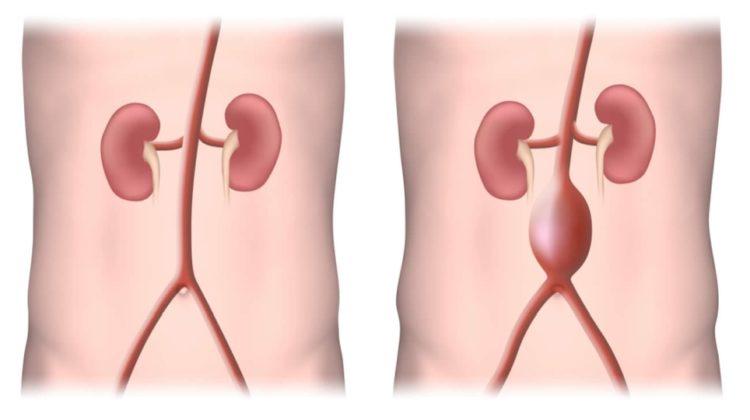 (Φωτ.: www.vascularhealthclinics.org)